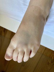 Hämatom auf Fußrücken