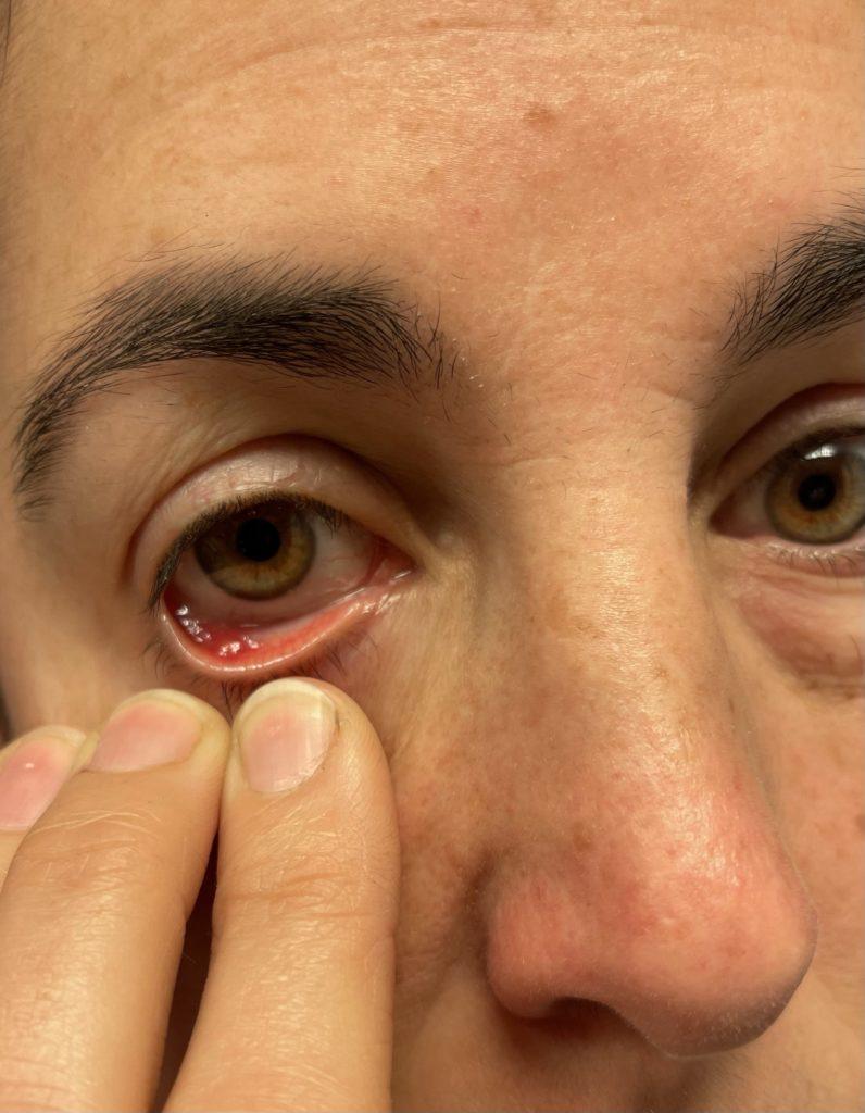 Gerstenkorn im Auge