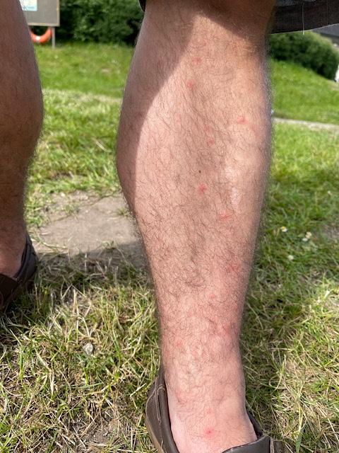 Mückenstiche am Bein